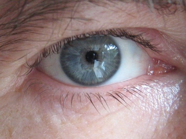 Irisdiagnose / Augendiagnose
