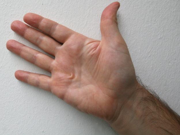 Handverletzungen