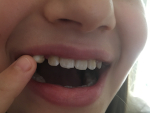 Zahnverlust